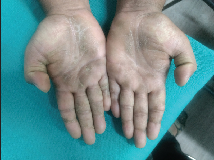 Figure 1: Patient's palms at the time of presentation